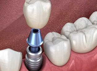 做种植牙怎么样 沈阳亿美佳口腔门诊部种植全口牙费用