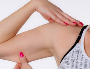 手臂吸脂的吸脂量有限制吗 北京亚奇龙整形医院排名