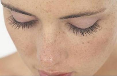 昆明激光祛斑需要多少钱 激光祛斑疼不疼