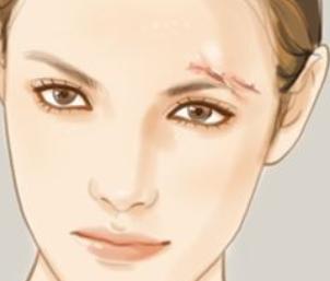 郑州艾媚尔整形医院激光祛疤怎么样 能治疗哪些疤痕
