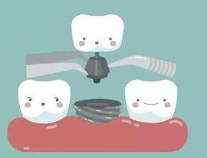 昆明德韩口腔医院种植牙的操作过程 种出一口好牙