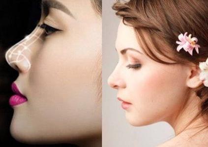 隆鼻修复恢复期要多久 桂林唯美整形医院塑造自然鼻型