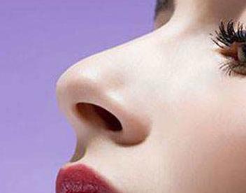 广西医科大学整形医院隆鼻修复案例 开启鼻子蜕变之旅