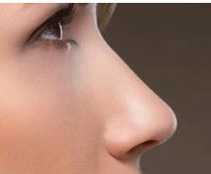 塌鼻子怎么样变挺 阳泉美亚整形医院做自体软骨隆鼻好吗