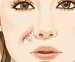 沈阳盛京尚美整形医院激光祛疤优势 有效消除术后疤痕