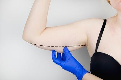 女人如何拥有纤细手臂 手臂吸脂术是您不二的选择