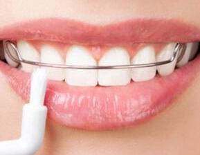 矫正牙齿年龄有限制吗 聊城口腔医院牙齿矫正贵不贵