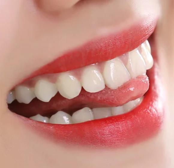 美容冠矫正地包天的优势 广州圣贝牙科医院让您笑容更灿烂