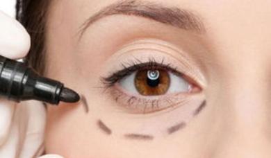 有效的祛眼袋方法有哪些 成都激光去眼袋价格贵吗