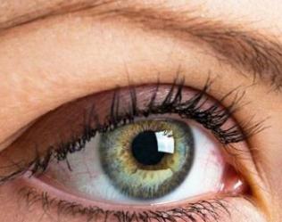 上眼睑松弛的分类 重庆晶肤整形医院上眼睑下垂矫正方法