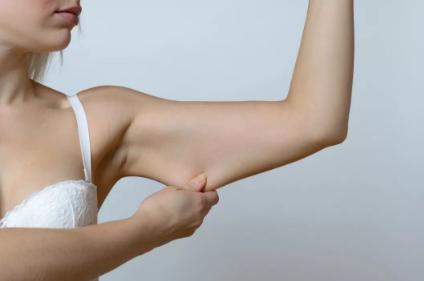 吸脂瘦手臂案例 广州做手臂吸脂需要多少钱