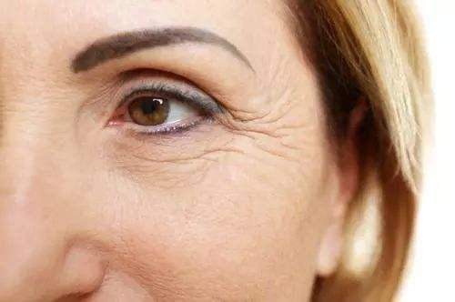 怎么消除眼角皱纹 北京美玉颜整形医院玻尿酸去鱼尾纹贵吗