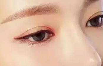 做双眼皮切开多久恢复自然 厚眼皮适合割双眼皮吗