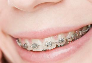 牙齿畸形怎么办 深圳罗湖区口腔整形医院牙齿矫正会反弹吗