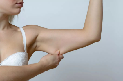 手臂吸脂后如何护理 西宁澳丽减肥中心吸脂优势