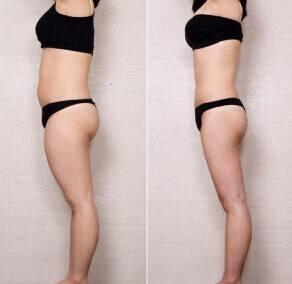 温州东华整形大腿吸取脂肪手术 专业抽取脂肪 马上享
