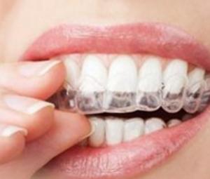 牙齿矫正器该如何选择 北京矫正牙齿需要多少钱