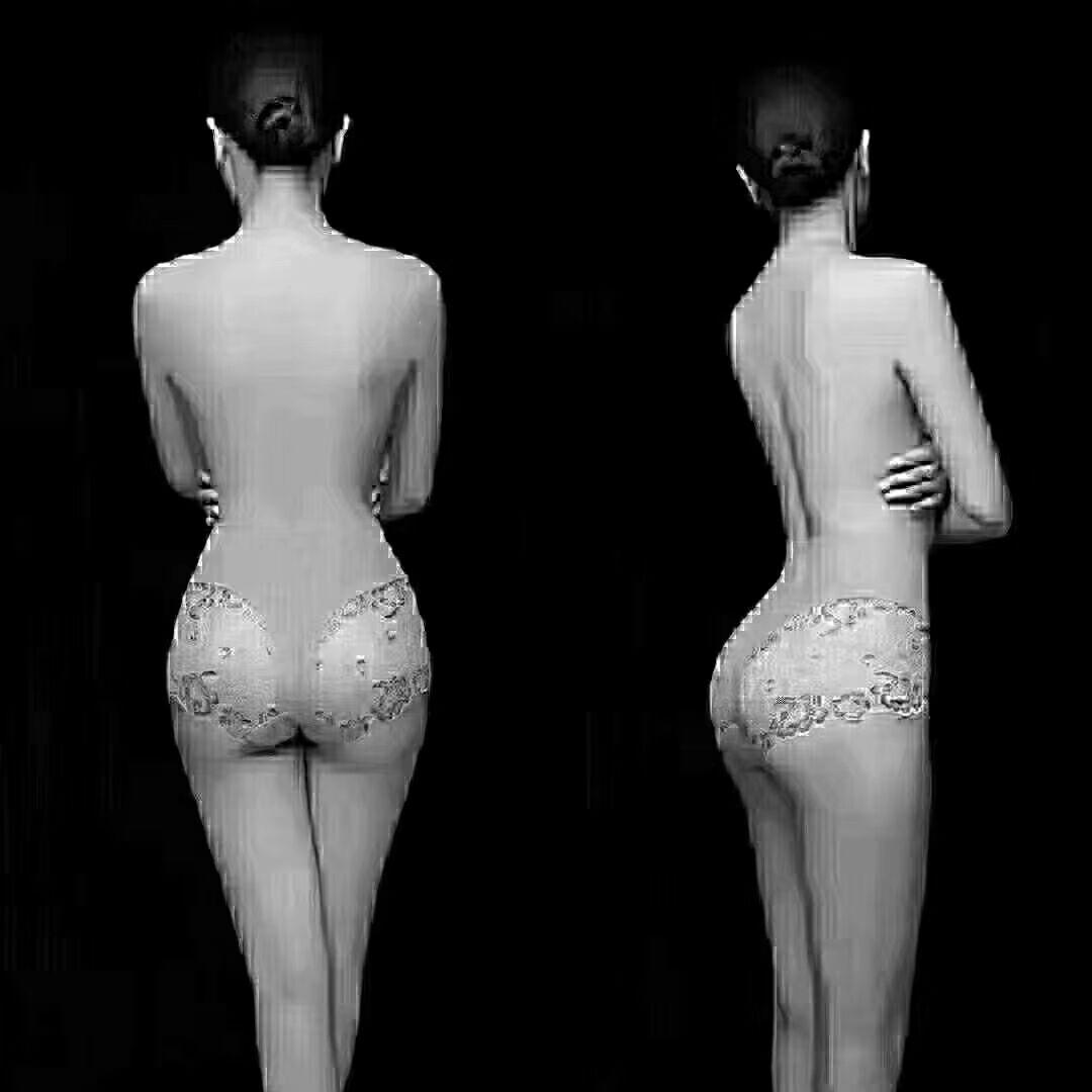 威海金政华整形医院背部吸脂效果 塑造背部美丽曲线