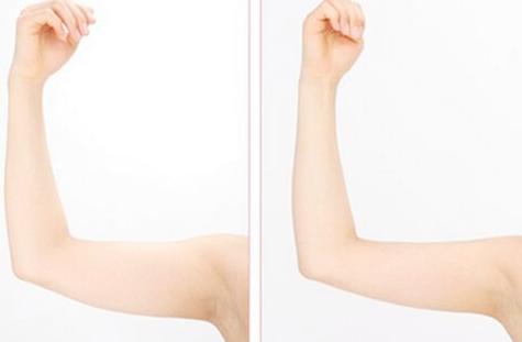 西宁时光美容整形医院手臂吸脂贵吗 手臂吸脂反弹吗