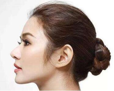 大连艺星整形医院鼻小柱延长术前准备 鼻小柱延长手术方法