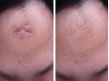 上海瑞芙臣整形医院做激光祛疤痕手术怎么样 祛疤费用高吗