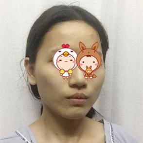 上海名仁整形医院下颌角磨骨效果好自然 秒变小仙女