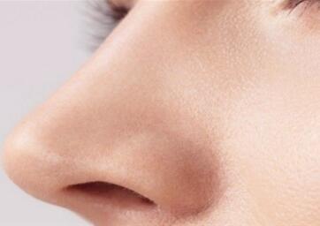 南昌俊雅整形医院鼻小柱延长价格多少钱 材料是哪些呢