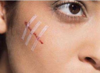 广州凯美达整形医院激光祛疤价格贵吗 祛疤效果好吗