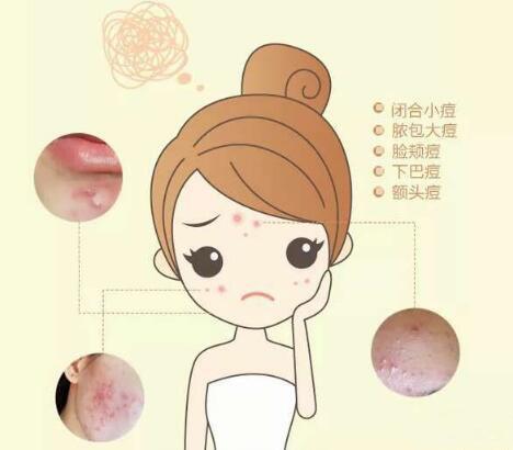 广州名韩整形医院激光祛痘印靠谱吗 美丽青春不留痘