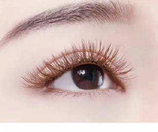 成都碧莲盛植发整形医院种植眉毛手术过程 种植眉毛多少钱