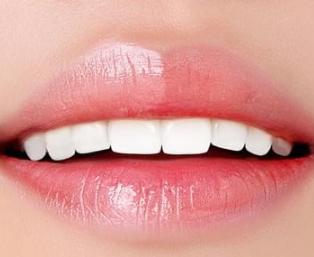 中山升艺口腔医院牙齿矫正后反弹的几率 牙齿会松动吗