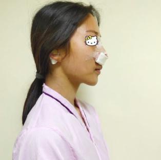 天津美莱整形医院肋软骨隆鼻太自然了 360度无死角