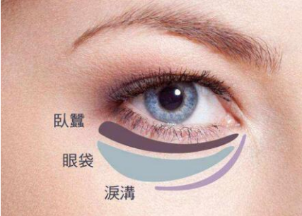 广州做祛眼袋的手术需要多少钱 效果是永久的吗