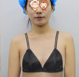 上海美仑整形医院假体隆胸案例 我也能拥有性感大酥胸啦