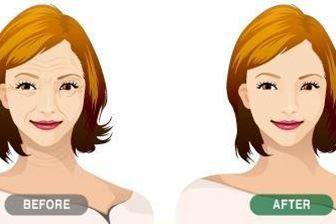 浙江中医院整形科激光除皱效果如何 让皮肤恢复白嫩光滑