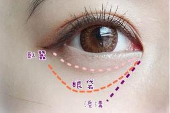 郑州天后整形医院内切去眼袋适合哪些人 内切去眼袋多少钱