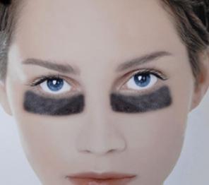 重庆万君整形医院激光祛黑眼圈手术费用 会有伤口吗