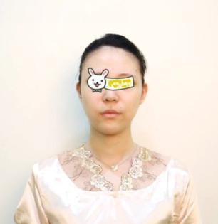 上海美之源整形医院面部吸脂案例分享 我也能拥有巴掌脸了