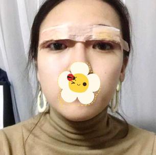 苏州美莱整形医院切开双眼皮案例 打造魅力电眼
