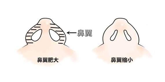 重庆万州华美紫馨整形医院鼻翼缩小的特点 术后如何护理