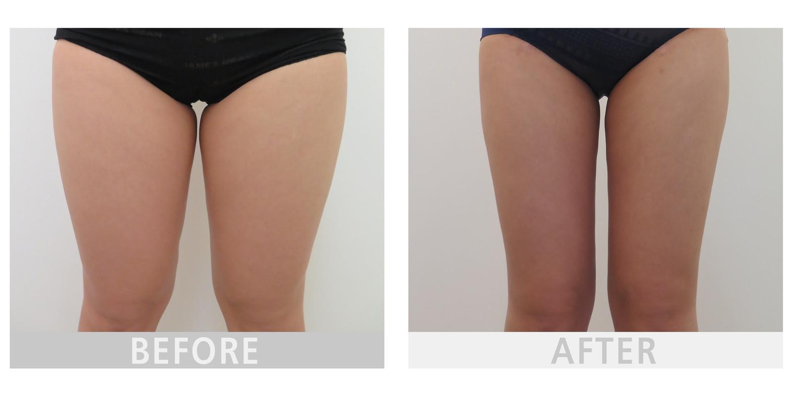 广州中科美美容整形做大腿吸脂需要多少钱