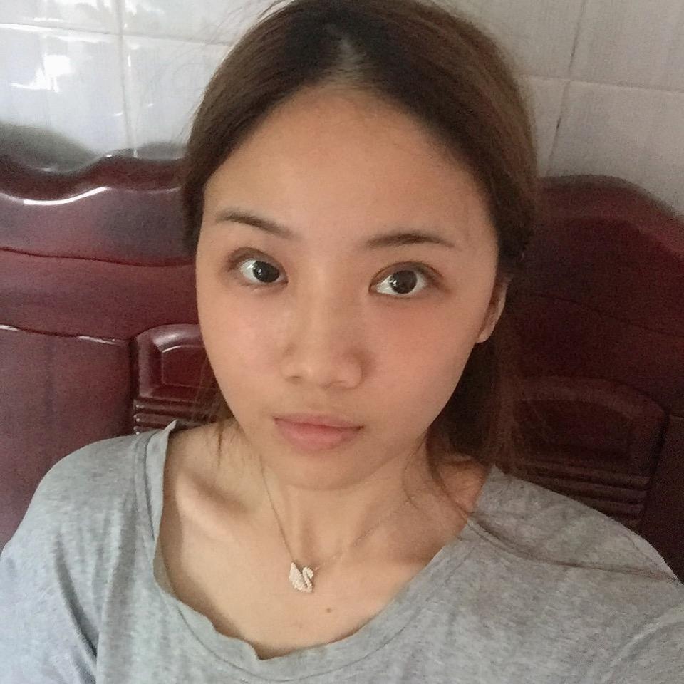 深圳青逸植发医院种植发际线 让我变的美美的