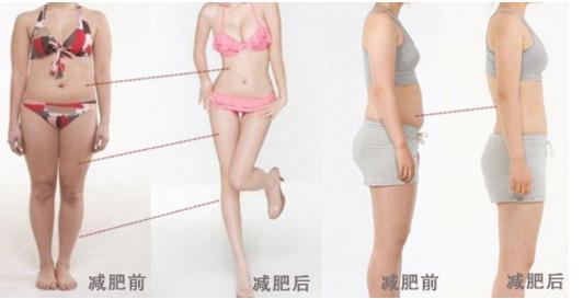 三亚红妆尚整形医院全身吸脂有效果吗 跟肥胖说拜拜
