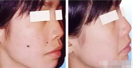 重庆曹阳丽格整形医院做激光祛痣价格 对皮肤有害吗