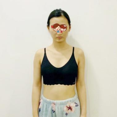 重庆威妮整形医院做假体隆胸 让我更加自信了