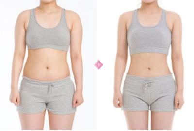 如何快速减肥瘦身 重庆中山医院整形科做全身吸脂怎么样
