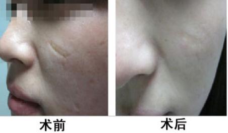 脸上有疤该怎么去呢 保定华美整形医院做激光去疤需要多少