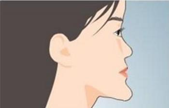 地包天很丑要如何治疗 北京欢乐口腔医院地包天矫正贵吗