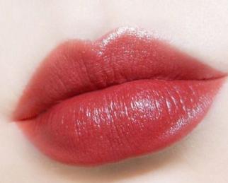 武汉艺龄整形医院漂唇的优点 让双唇锦上添花