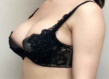 乳房下垂的原因是什么 昆明韩辰整形医院乳房下垂矫正好吗